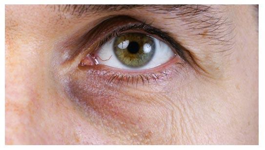 Beispiel Blau Braune Augenringe