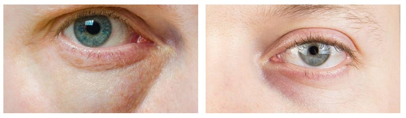 Beispiel Blaue Augenringe