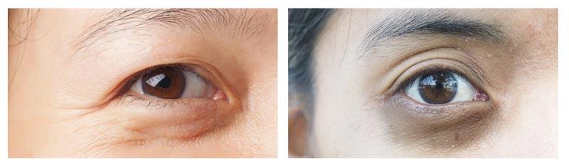 Beispiel Braune Augenringe
