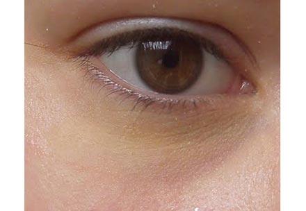 Beispiel gelbe Augenringe