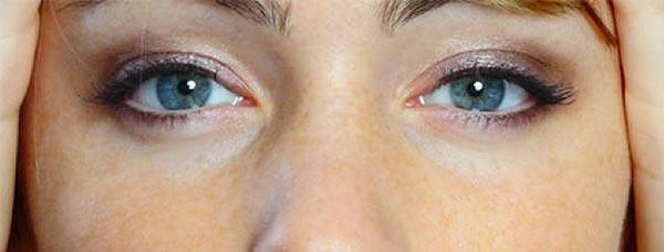 Beispiel Weisse Augenringe